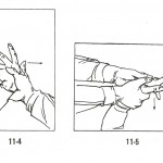 Forceful capture of the wrist