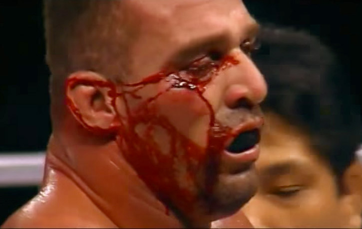 The Smashing Machine highlights the brutality of MMA