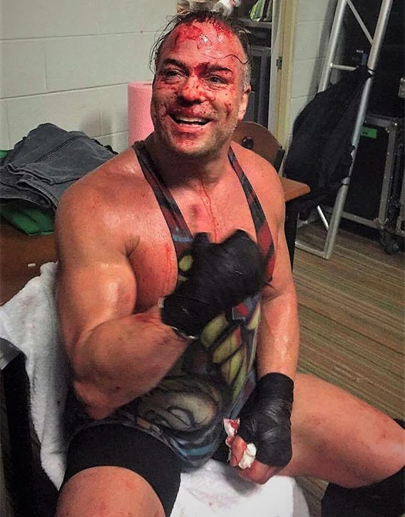 Rob wears his battle scars with pride!
